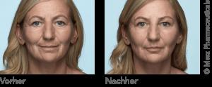 Radiesse Vorher Nachher ganzes Gesicht Kasg-Aesthetik