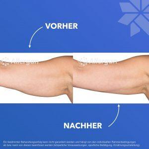 Coolsculpting Arm vorher nachher Kasg Aesthetik